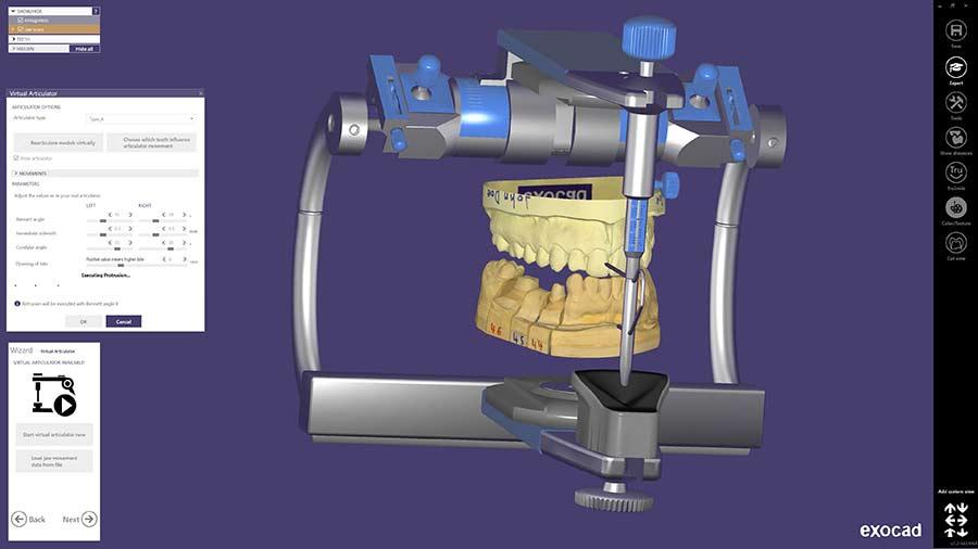CAD Software - exocad
